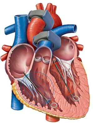 Heart with two flow probes and PV catheters in left and right ventricles