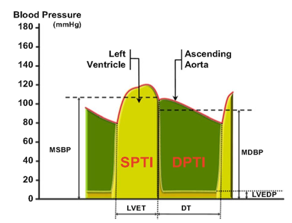 Buckberg Index SPTI and DPTI