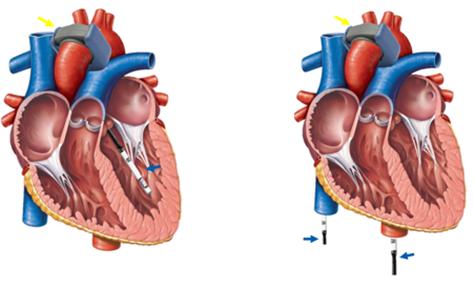 Flowprobe and Pressure Catheter on Heart