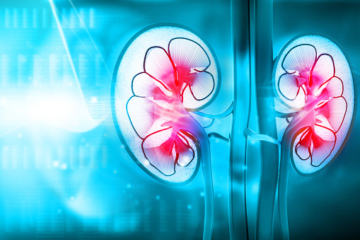end stage renal disease stats