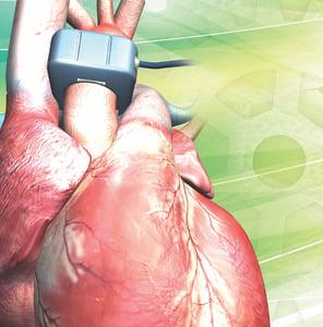 Heart with PAU probe