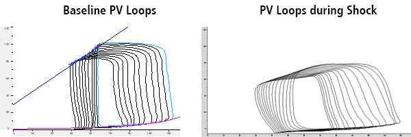 Herpain Baseline and Shock PV loops