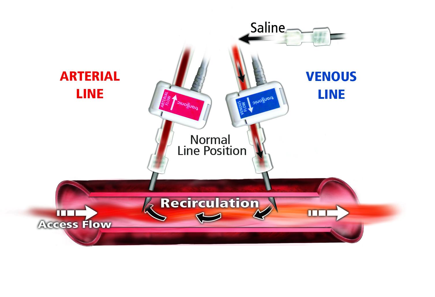 Vascular Access Recirculation