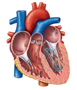 Heart with PV Catheter - Blood v Muscle Contribution