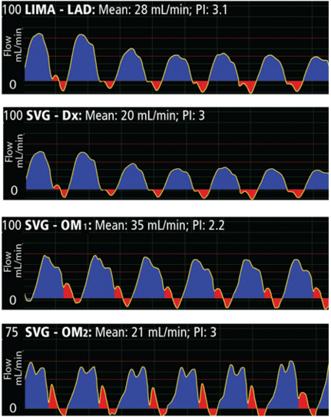 analysis-of-a-flow-waveform