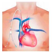 central-venous-catheter