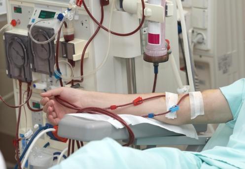 hemodialysissurveillance.jpg