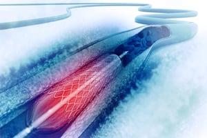 flow-measurements-help-cardiothoracic-surgeons.jpg