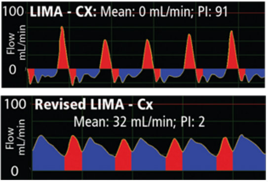 How Zero Flow can Trigger Graft Revision in LIMA-Cx Grafts