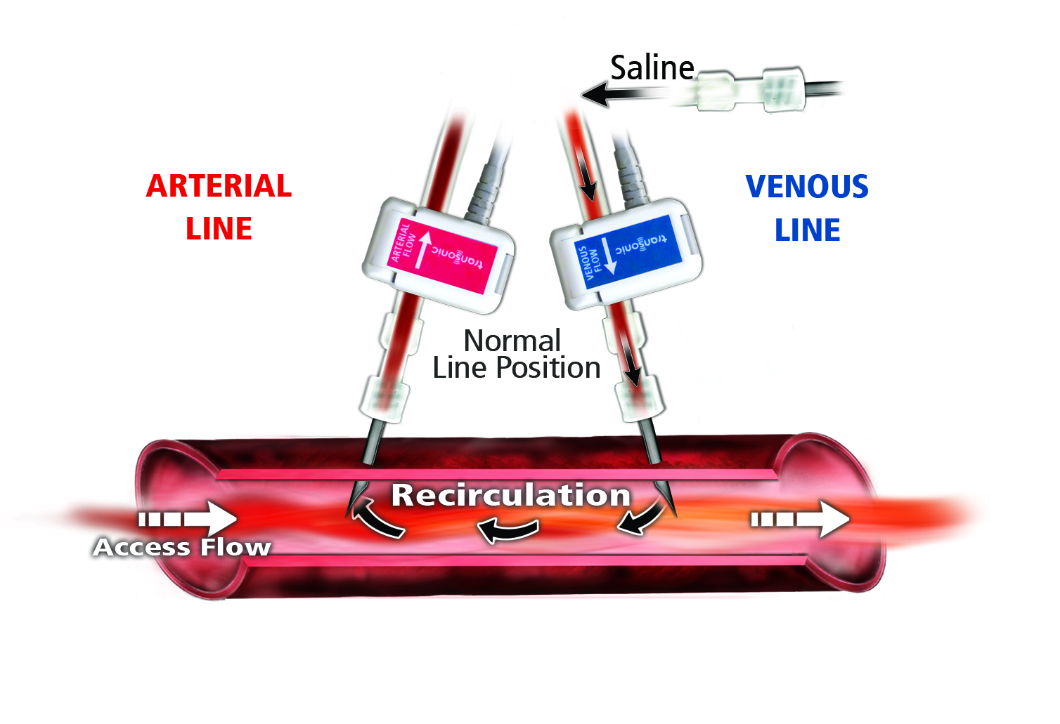 Zero Vascular Access Recirculation — the New Reality