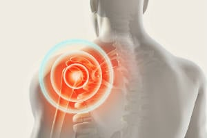Musculoskeletal Disorders in Surgeons: What to Know