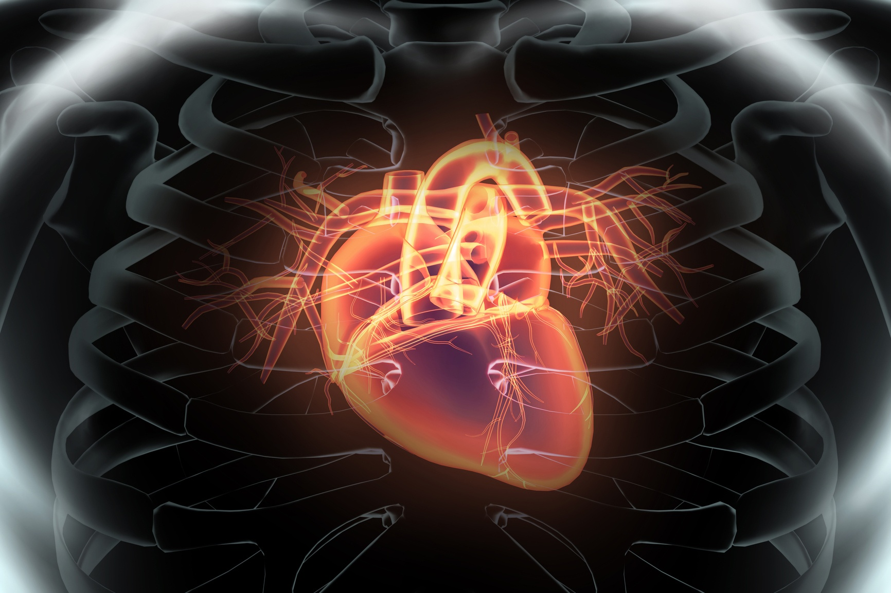 CMS Implements Payment Model for CABG Surgery