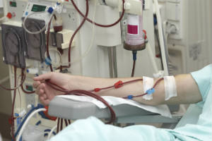 Hemodialysis Patient Story: How Vascular Access Surveillance Technology Helps
